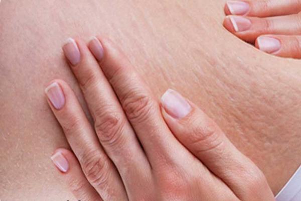 پوکه معدنی برای از بین بردن ترک های روی پوست